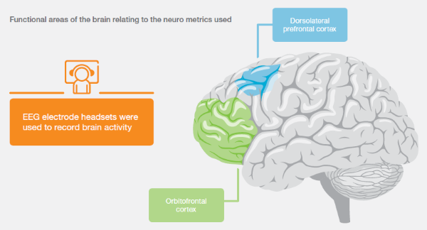Ericsson Brain Diagram